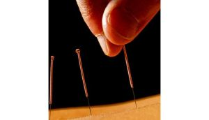 Acupuncture awareness week. photograph: getty images