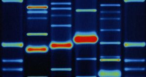 Unexpected consequences: a human DNA profile. Photograph: Seth Joel/PC/Getty Images
