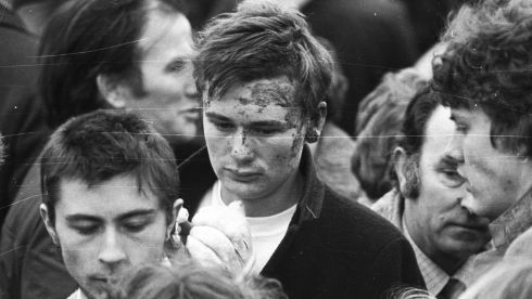 Pictured is an injured survivor at the funeral service forathe last of the victims of the Stardust fire in  Donnycarney in 1981.  Photograph: Pat Langan / The Irish Times