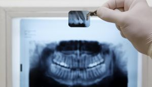 Prices for dental treatment are often highest in Dublin and sometimes only slightly cheaper further afield in the Republic. Even so, there is good value to be found.