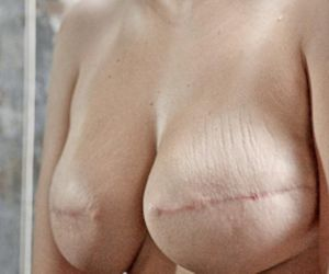 Breast reconstruction Why do so few Irish women opt for it?