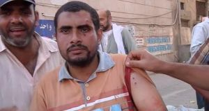 A videograb image of a protester injured today during demonstrations in Egypt.