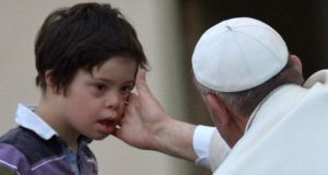 Pope Francis blesses a child with Down syndrome at St Peter's Square in the Vatican. Photograph: AFP/Getty