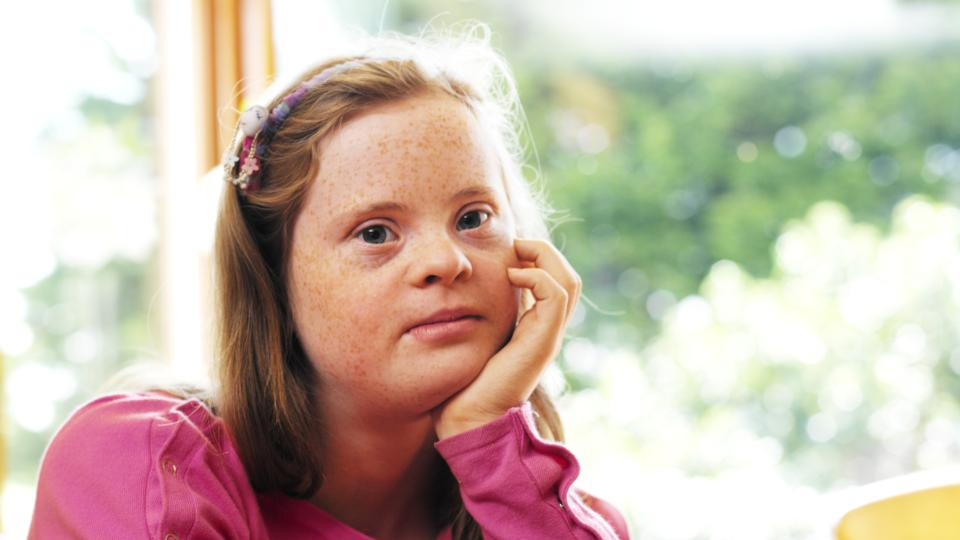 Down syndrome women — pic 1