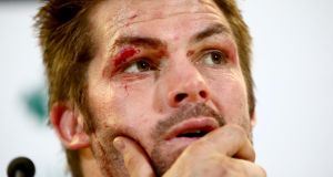 All Black captain Richie McCaw wears the scars of the match  following the   game against Ireland  at the Aviva Stadium. Photograph: Phil Walter/Getty Images