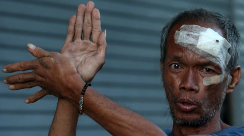 A Filipino typhoon victim suspected of  having a post-traumatic stress disorder (PTSD) gestures to passersby  in  Tacloban today. Photograph: Photograph: Dennis M. Sabangan/EPA