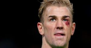 Manchester City's Joe Hart with a cut below his eye during the Barclays Premier League match at the Etihad Stadium, Manchester, on Saturday. Photograph: Dave Thompson/PA Wire