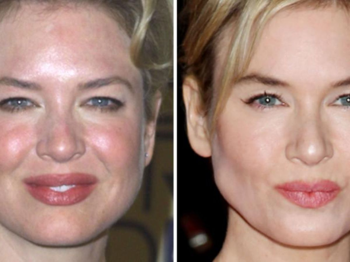Spare Your Blushes Five Skincare Products For Rosacea
