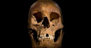 The skull of King Richard III: Scientists have announced plans to sequence Richard III's genomes in an attempt to discover more about the 15th-century monarch, including what he really looked like. Photograph: University of Leicester/PA
