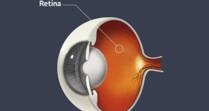 Treatment is for age related macular degeneration, a disease that makes blood vessels beneath the retina grow abnormally