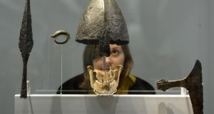 Viking Jaw bone and helmet from the Weymouth atrocity. Photograph: Anthony Devlin/PA Wire