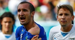 Italy's Giorgio Chiellini shows his shoulder, claiming he was bitten by Uruguay's Luis Suarez. Photo: Tony Gentile/Reuters