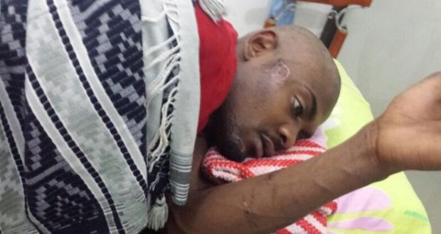 Mohamed Sleyum Ali after an alleged attack when he arrived  in Tanzania