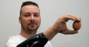 Delicate movement: Milorad Marinkovic holds an egg with his bionic arm. Photograph: Ronald Zak/AP