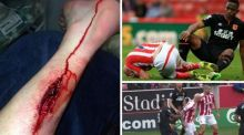 "The injury to Ireland that required ""something like 12 or 15 stitches"", according to Stoke manager Mark Hughes"