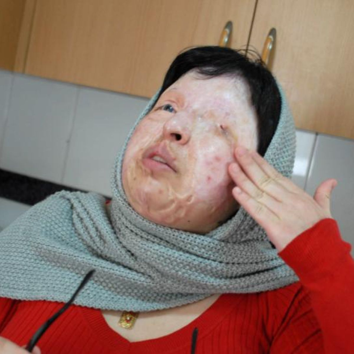 Iran applies Sharia law and blinds man over acid attack