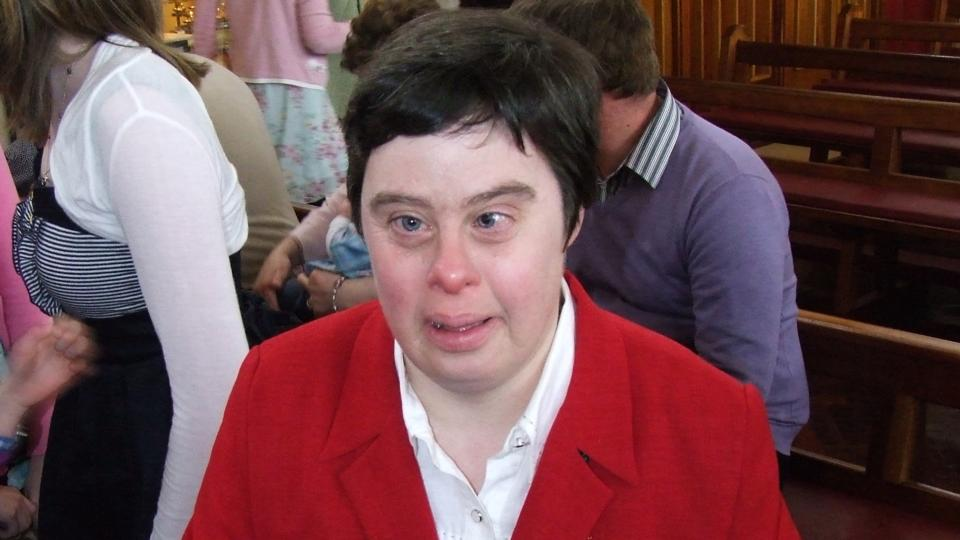 Adults with downs syndrome share