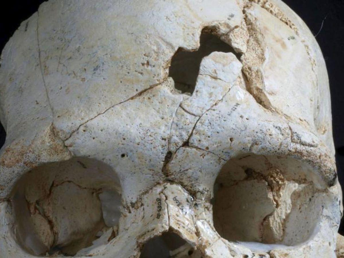 Prehistoric skull reveals oldest known murder
