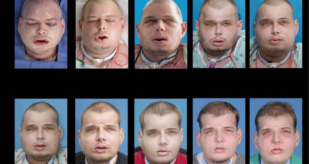 Firefighter has world's most extensive face transplant
