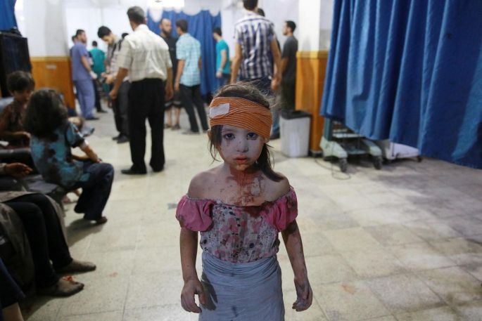 A wounded Syrian girl at a makeshift hospital in the rebel-held area of Douma, east of the capital Damascus, following shelling and air raids by Syrian government forces on August 22nd. The air strikes killed more than 100 people and sparked international condemnation. Photograph: Abd Doumany/AFP/Getty Images.