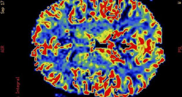 Unthinkable Is It Unethical To Take Brain Stimulants