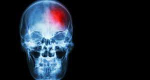 The death rate from stroke has been cut by more than a quarter, a national audit of services has found.