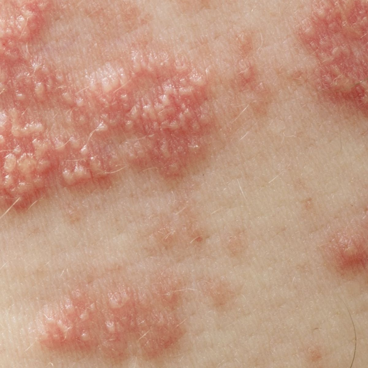Shingles: the facts and myths