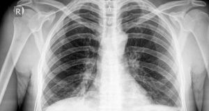 Tuberculosis discovery: The findings, related to a gene known as  MAL,  could lead to personalised treatments for those who develop TB. Photograph: Thinkstock