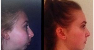 Rebecca Heasley before and after the eight-hour surgery in which bone was taken from her hip to rebuild her jawline.