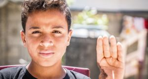 Amed Al Halw (14), from Gaza, who lost his thumb in an Israeli airstrike in Gaza in 2014. Photograph: John McColgan