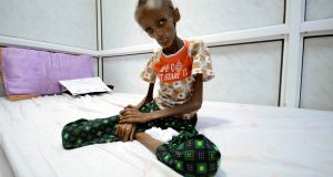 Saida Ahmad Baghili (18) who is affected by severe acute malnutrition, sits on a bed at the al-Thawra hospital in the Red Sea port city of Houdieda, Yemen. Photograph: Abduljabbar Zeyad/Reuters