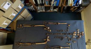 Human skeleton bones discovered in a previously unknown Anglo-Saxon cemetery in Norfolk. Photograph: Reuters