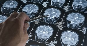 Alzheirmer's treatment: The Implantation of brain probes was considered too invasive. Photograph: Getty Images