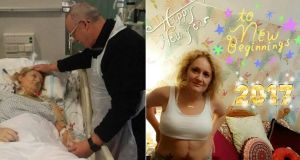 Lynda O'Mahony, from Mitchelstown, Co Cork before and after her liver transplant.
