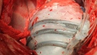 Soft robot opens up new possibilities for heart treatment