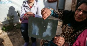 Finti Faiz Aljasim shows where shrapnel entered her foot when her home was hit by a shell. Photograph: Sally Hayden
