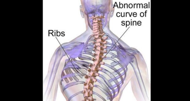71ff3fcde3bf9 Scoliosis is a sideways curvature of the spine that manifests itself most  often during the growth