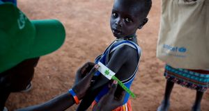 A boy has his arm measured to see if he is suffering from malnutrition during a nutritional assessment at an emergency medical facility supported by UNICEF in Kuach,  South Sudan. Photograph: Kate Holt/UNICEF via AP