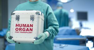 A comprehensive report on organ donation in Ireland was  published by the Oireachtas committee in September 2013.