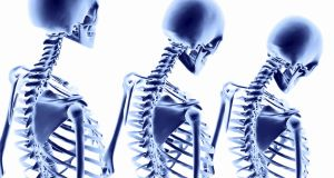 It is estimated that 300,000 people in Ireland have osteoporosis, which causes the inside of bones to become easily breakable. One in four men and one in two women over 50 will break a bone due to the condition.