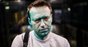 Russian opposition leader Alexei Navalny after unknown attackers doused him with green antiseptic in Moscow. Photograph: Evgeny Feldman/via AP