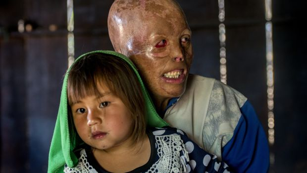 Yeyang Yang, aged 31, with his daughter Syya (6) at their home in Banxang village, Phonsavan, Laos. He was burning rubbish when the heat of the fire ignited a UXO in the ground and it exploded. Photograph: Brenda Fitzsimons