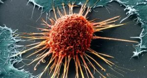 An electron micrograph of a cervical cancer cell. About  90 women die from the disease in Ireland annually.