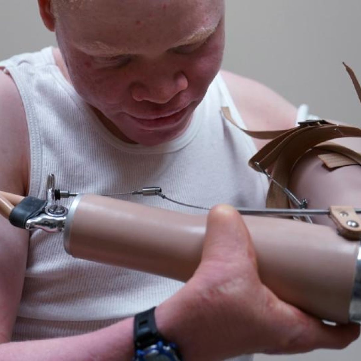 Albino children attacked for body parts get new limbs in America