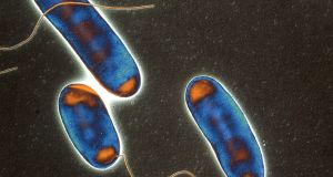 File image of Legionella bacteria. File photograph: Science Photo Library