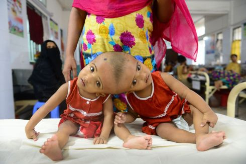 STUCK ON YOU: Bangladeshi conjoined twins Rabia and Rukia in hospital in Dhaka. The one-year-olds were visiting the hospital for a check-up, and will have to wait for a medical opinion on whether they will be able to undergo surgery to be separated. Photograph: Munir Uz Zaman/AFP/Getty Images