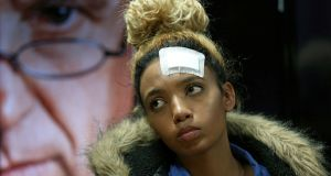 Gabriella Engels, who claims to have been assaulted by Grace Mugabe, looks on during a news conference last week. Photograph: Siphiwe Sibeko/Reuters