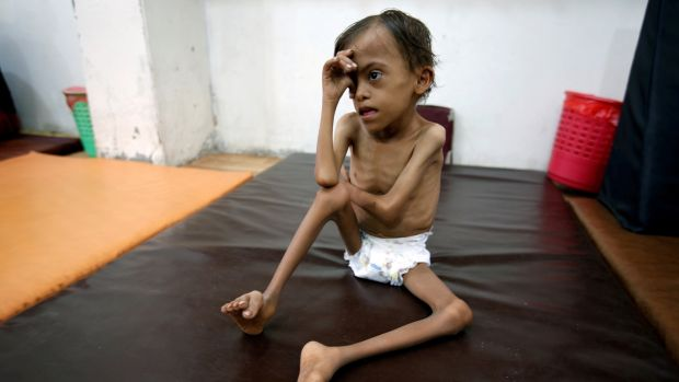 A malnourished child, Marwan Ahmad Mahyoub (10), sits at a special care centre where he receives rehabilitation exercises in the Red Sea port city of Hodeidah, Yemen, on August 19th. Photograph: Abduljabbar Zeyad/Reuters