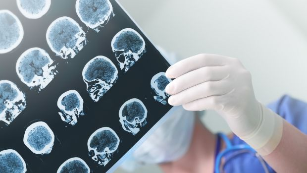 In an ideal scenario, stroke is identified quickly and the patient whisked to a specialised hospital where the waiting medical team administer clot-busting drugs, and then scan the brain so the location of the clot can be established. Photograph: iStock