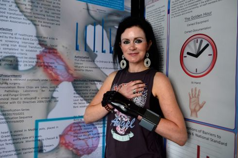 SEPSIS SURVIVOR: Niamh Boyle, who received a bionic hand after losing fingers to sepsis, was a guest speaker at a conference at Dublin Castle. One in five people who develop the disease die from its effects, according to data published on Tuesday. Photograph: Cyril Byrne/The Irish Times